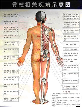 中医正骨培训脊柱相关疾病示意图